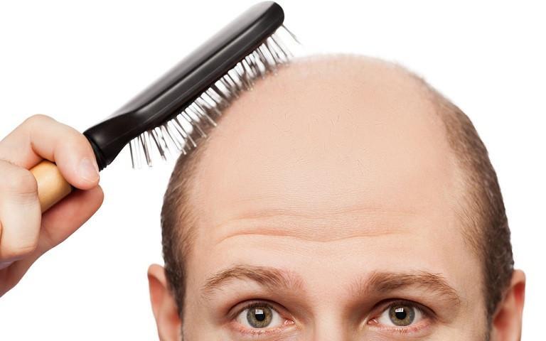 có nên sử dụng thuốc bôi mọc tóc