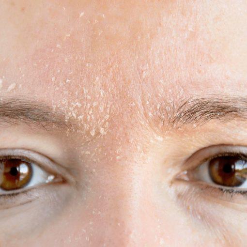 Da nhạy cảm và da khô thì không nên chọn cách rửa mặt bằng kem đánh răng