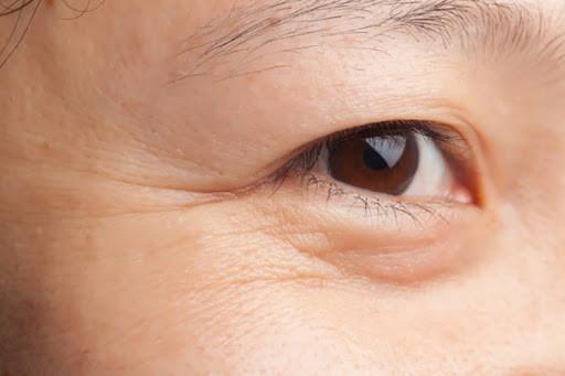 Vùng da mắt bị khô nhăn khiến khuôn mặt của bạn trông già hơn